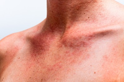 Rash On Arms And Legs Only Not Itchy - HealthTap