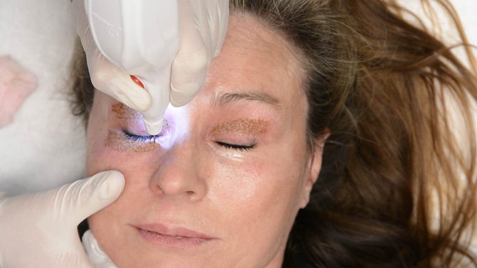 tratamiento-eyelid-removal